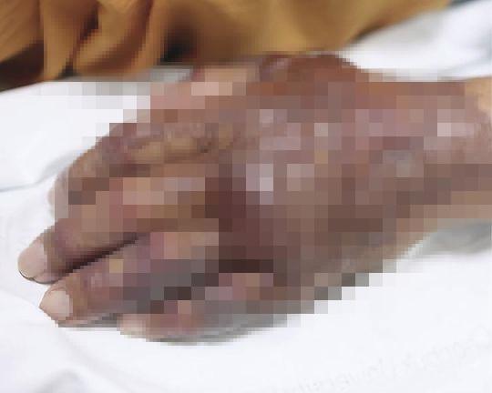 韩国71岁男子手部溃烂直到截肢 只因吃了一盘寿司