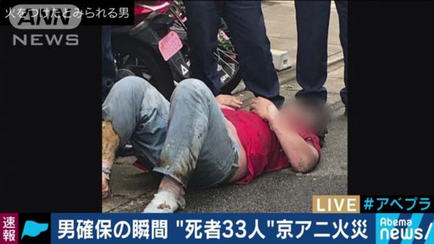 京阿尼纵火案嫌疑人现年41岁 有明显烧伤送院后生命垂危