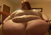 美女子295公斤称睁眼就想吃
