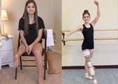 9岁截肢她仍不放弃跳舞(图)