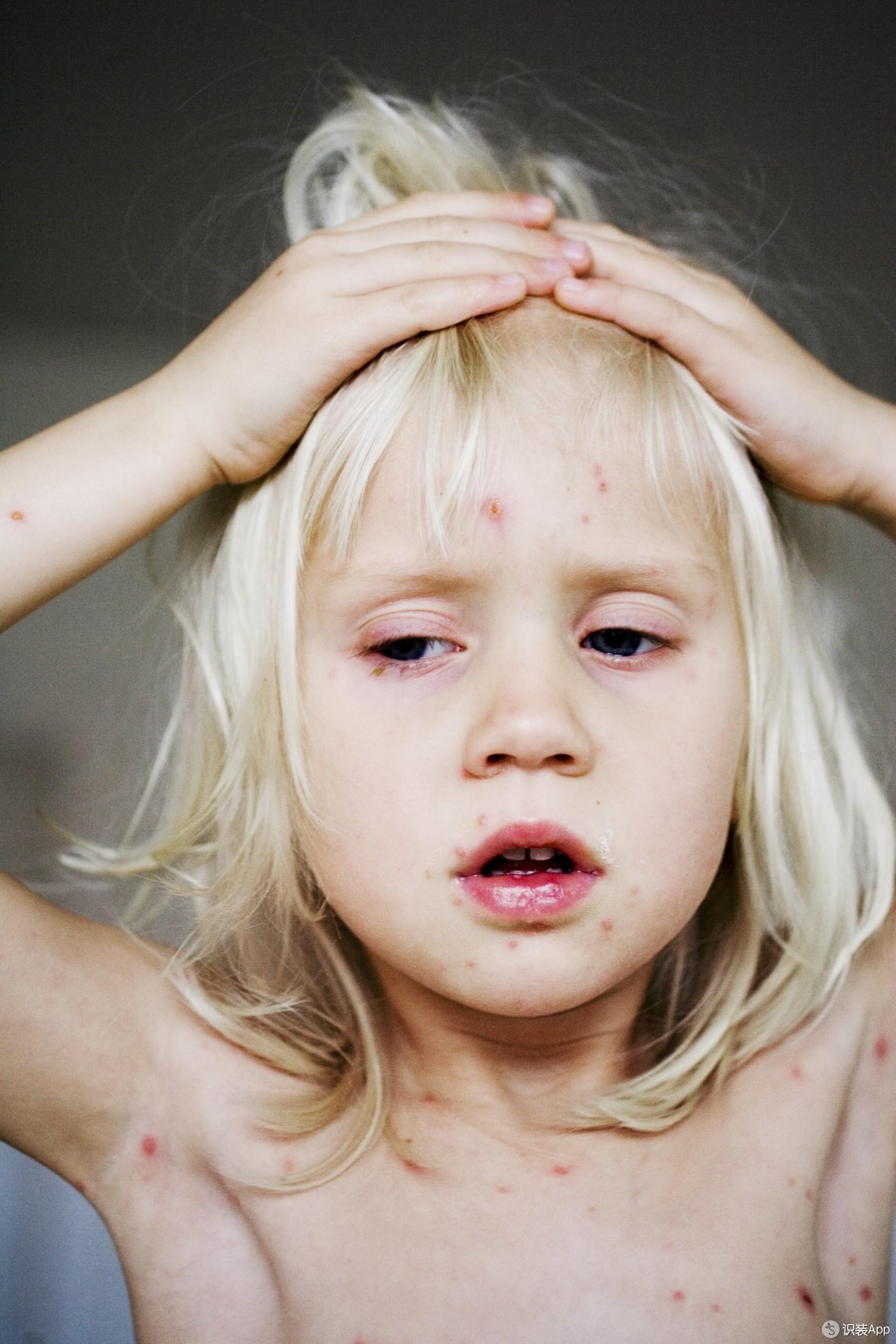 爱美姐可是一位hin容易长痘痘的可爱宝宝.