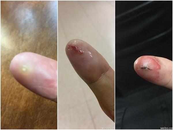 【星娱TV】任贤齐皮肤内藏6个月玻璃碎片,后果是…