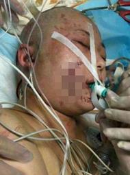 京被老虎咬伤女子毁容 手术难恢复