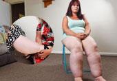 女子大腿围76厘米似树干