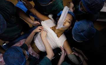 实拍:女大学生花38万隆胸全过程