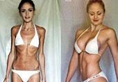 厌食症女孩健身后…