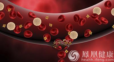 99%的血栓无征兆!记住一个字,就能远离全身血栓