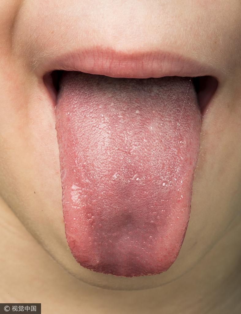 每天坚持吃一物就能排出体内十年湿毒?