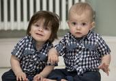 双胞胎一个长发一个脑门光亮