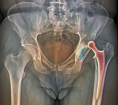 人造髋关节缺陷致6名患者切除臀部 强生被判赔2.5亿美元