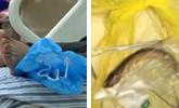让黄鳝从肛门钻进肚子 40岁男子被送进重症监护室