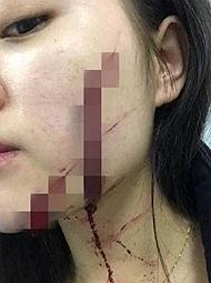 18岁女孩称被室友带回的男生砍毁容