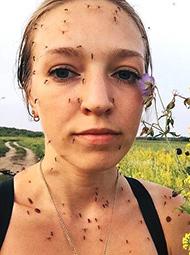 姑娘晒自拍 满脸蚊子