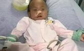 15个月女婴因吃它肚子突然鼓成西瓜 一度心脏停跳