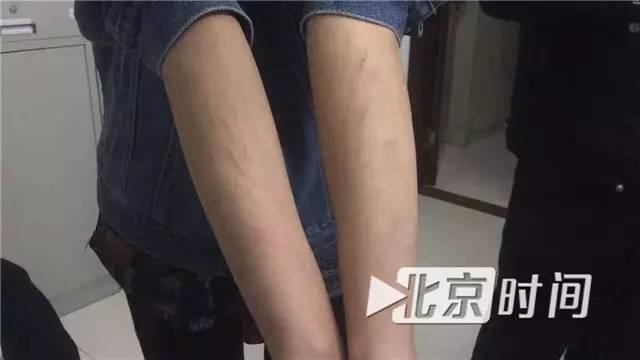 女记者采访遭房地产公司员工抱摔