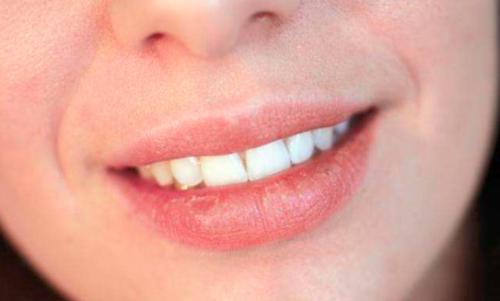 嘴角烂是缺什么维生素 嘴角湿疹缺什么维生素?一个简单有效的小妙招分享